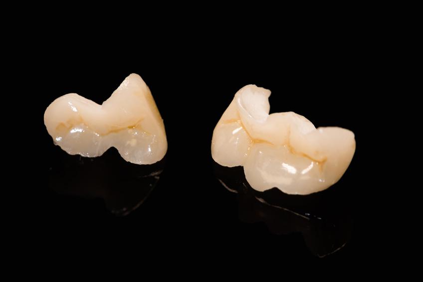 Keramik-Inlay mit natürlichen Zahnfarben auf dem Gipsmodell.