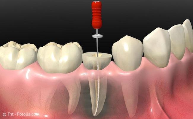 Wurzelbehandlung im Zahn