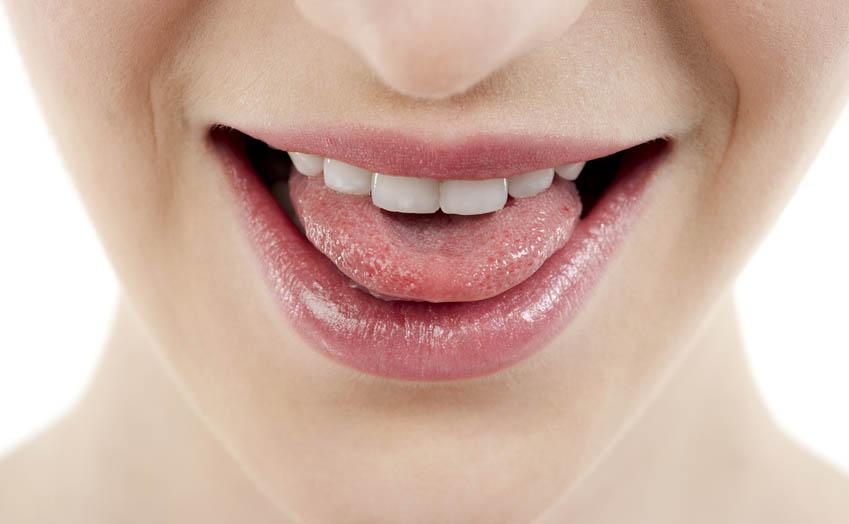 Warum muss man auch die Zunge regelmäßig reinigen? Antworten vom Zahnarzt!