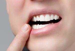 Veneers sind eine zahnschonende und ästhetische Alternative zu Kronen.