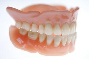 Feste Zähne mit Mini-Implantate