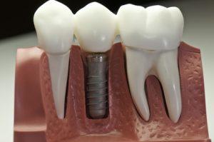 komfortabel zu festen Zähnen