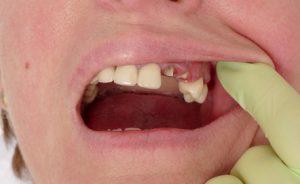 Sofortimplantate schatt Zahnlücke