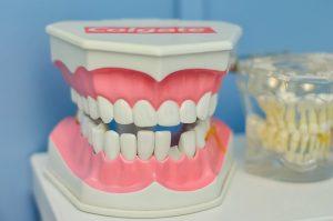Früherkennung Zahnkrankheiten